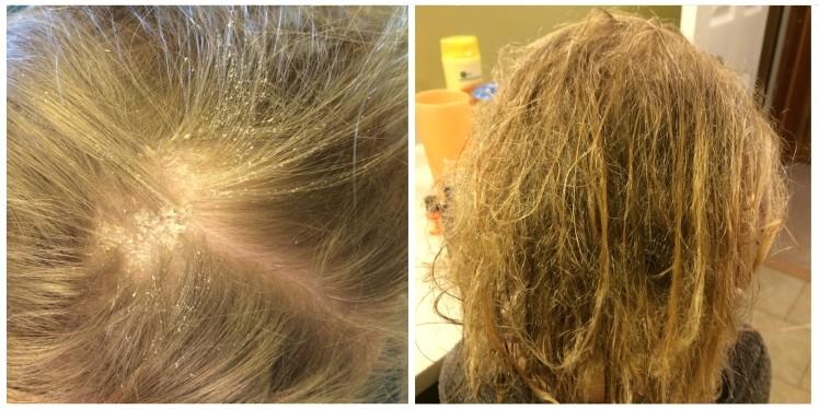 Repairing Chlorine Damaged Hair